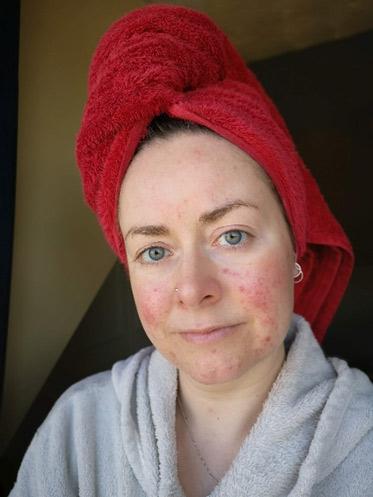 sensitive skin-rosacea