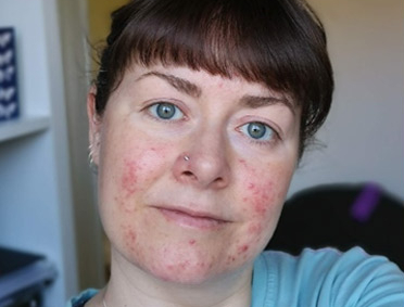 ROSACEA, this subject is very close to my own heart.
