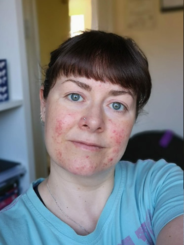 girl with rosacea symptoms