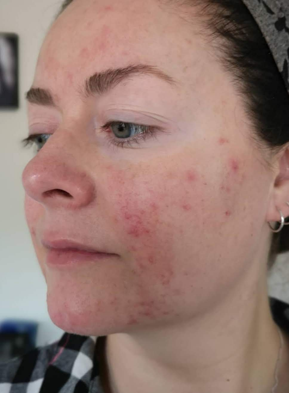 living with rosacea,